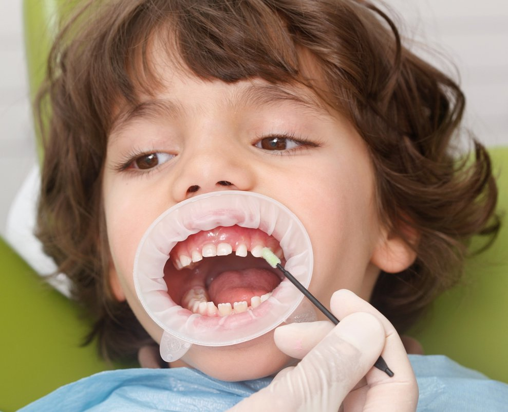 Fluor Dental – Clínica dental en Lima Perú – Solución dental